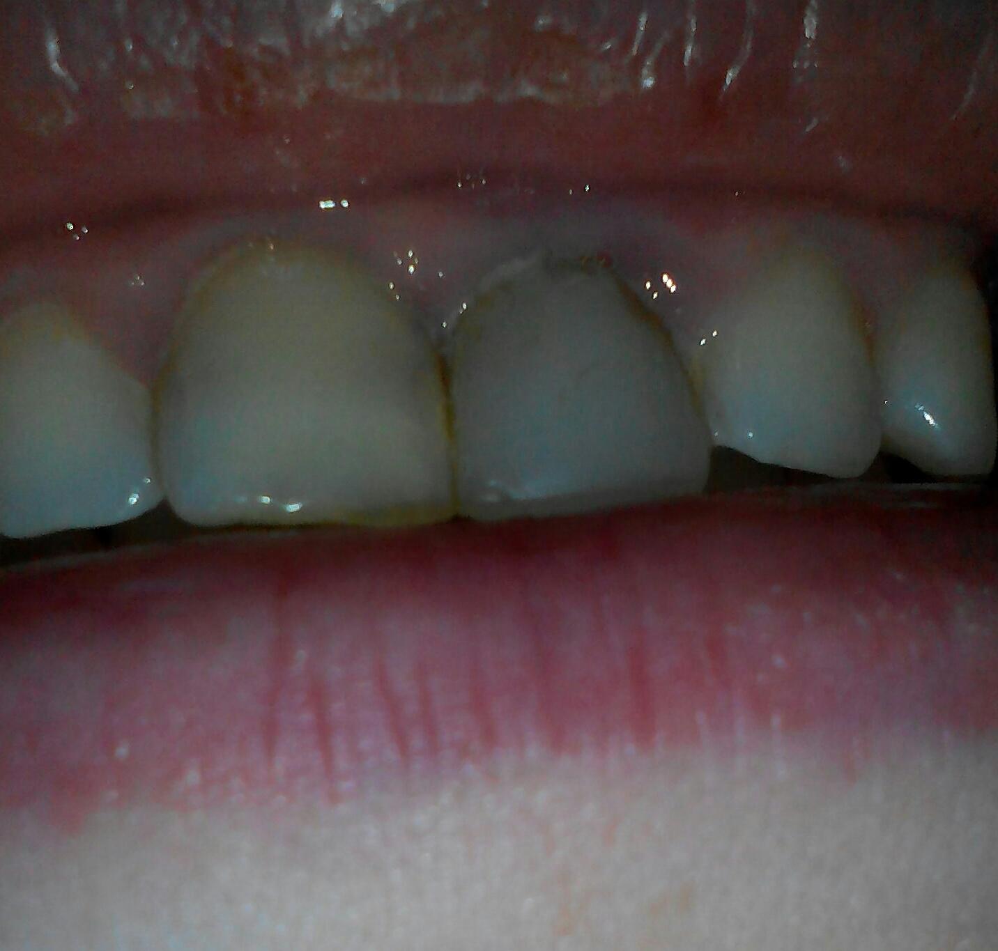 Когда чернеет передний зуб