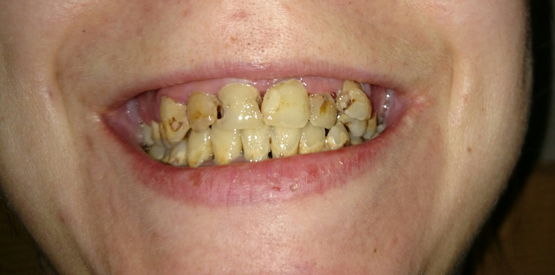 К чему снятся зубы зуб раскрошился